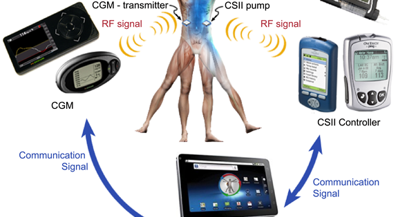 Implantable AP featured in Science Daily