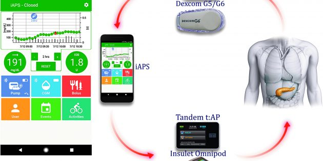 Artificial Pancreas Smartphone App Shows Positive Trial Results